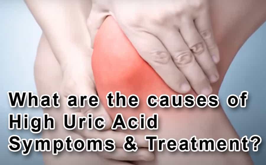 High Uric Acid Symptoms